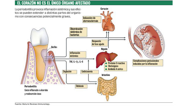 Una mala higiene bucal podría afectar a tu corazón