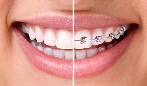 ortodoncia cuanto cuesta para niños o adolescentes