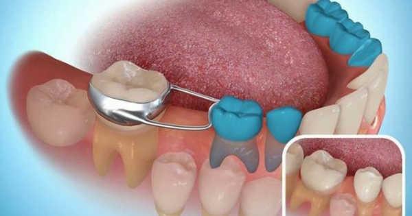 qué pasa si se pierde un diente de leche antes de tiempo