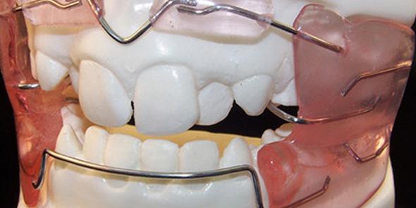 la ortopedia dental puede corregir los problemas que llevan a necesitar ortodoncia