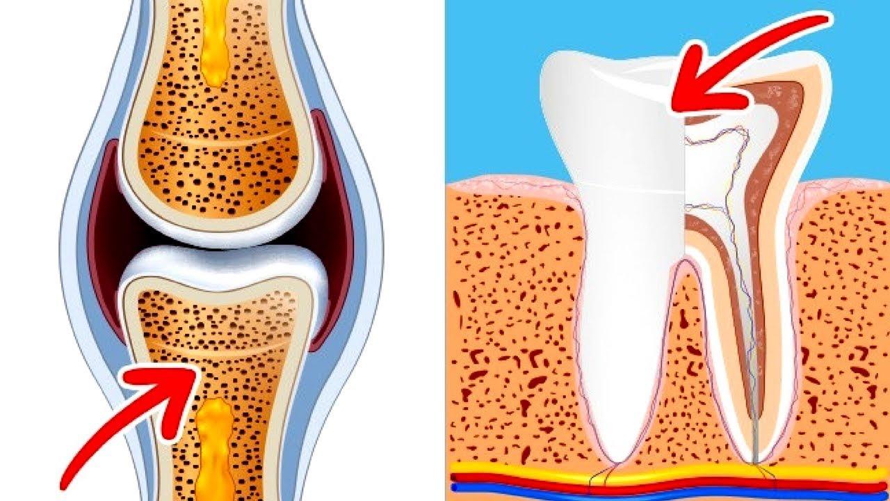 Y si no son de huesos, ¿de qué están hechos los dientes?