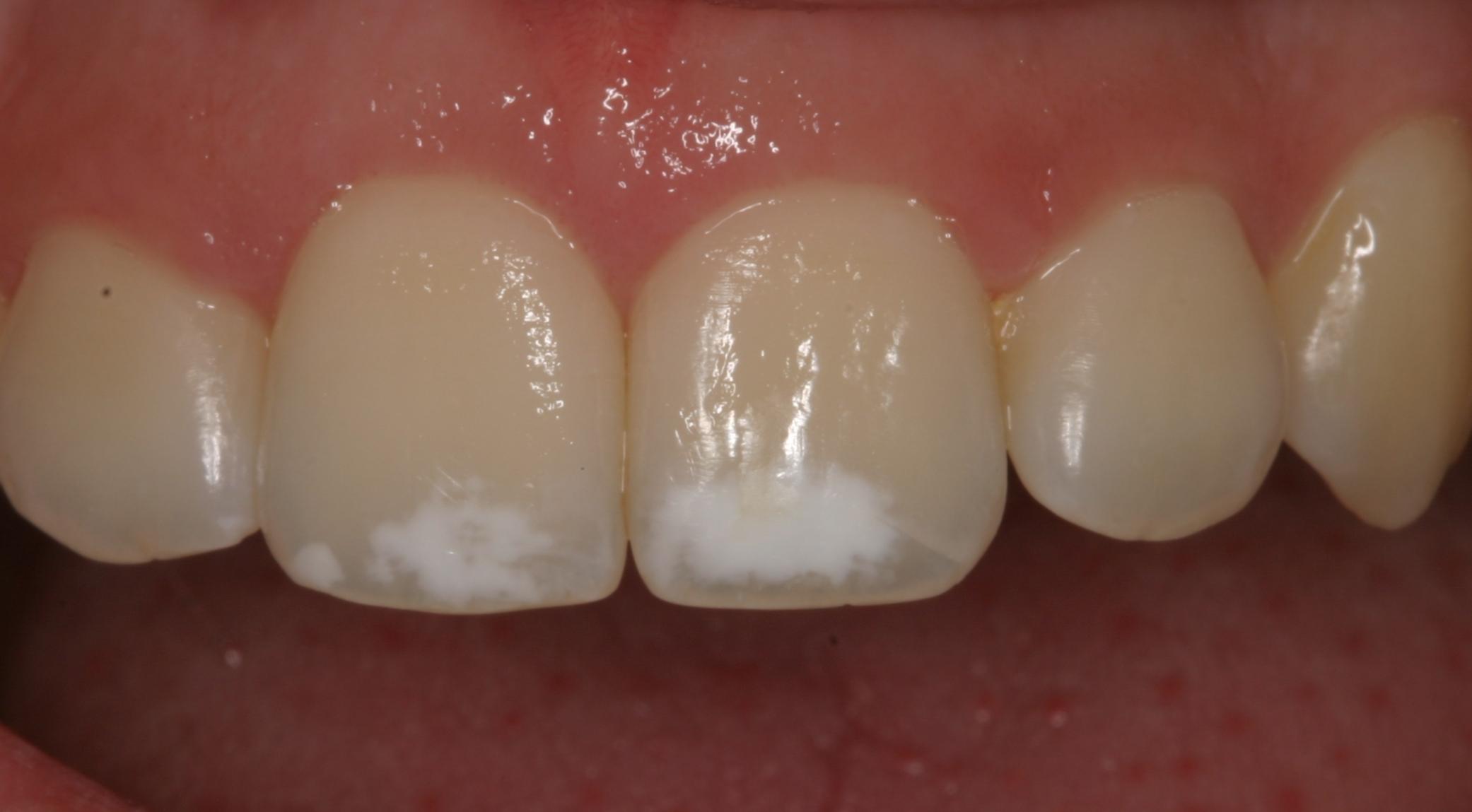 hipoplasia: las manchas en los dientes