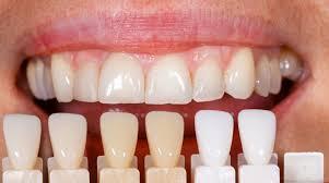 Los dientes no son totalmente blancos