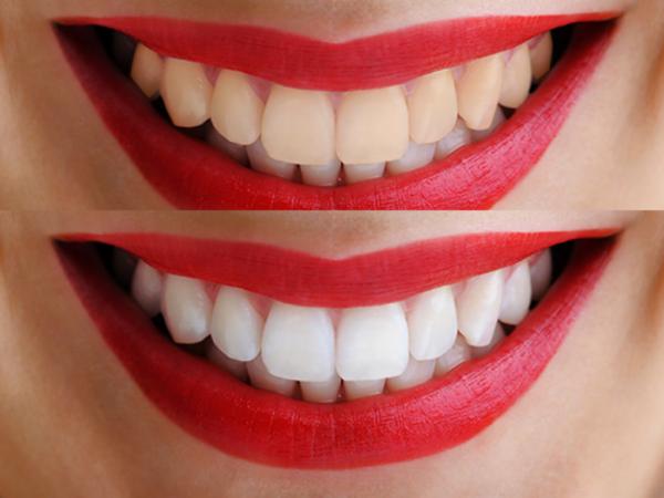 blanqueamiento dental casero o en clínica