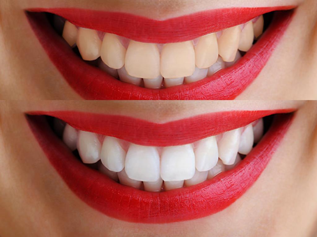Precio de un blanqueamiento dental casero y en clínica