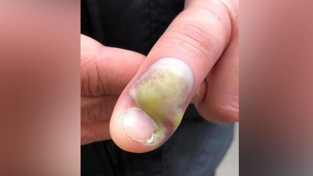 malos hábitos: morderse las uñas puede generar infección
