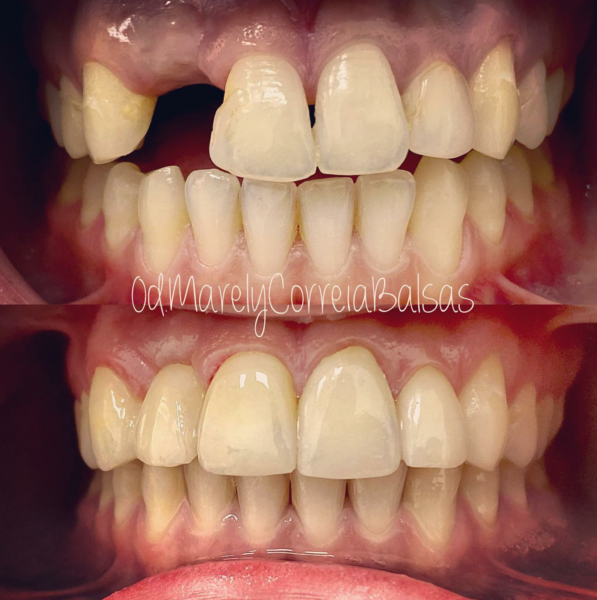 Trabajo diseño sonrisa con carillas estéticas en Dentikids