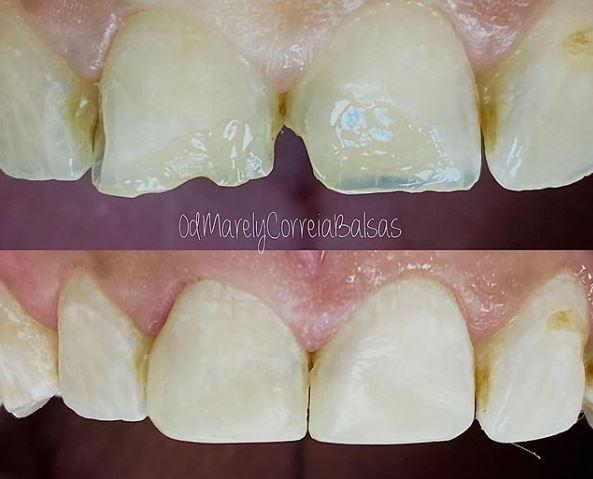 carillas dentales de la doctora Marely Correia en la clínica dental Dentikids