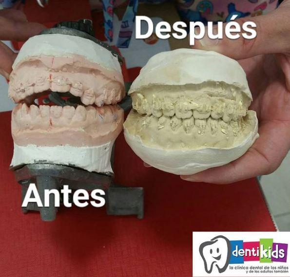caso real clínica dental Madrid Dentikids paciente deglución atípica dientes salidos solucionado con ortodoncia